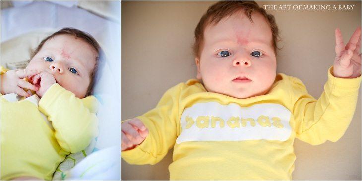Alexis: 2 Months